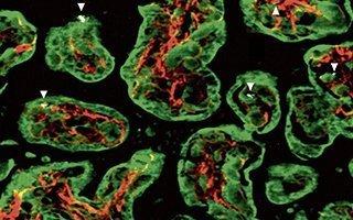 Roetdeeltjes in de lucht belanden in placenta en bereiken mogelijk de foetus